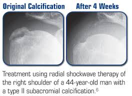 Shockwave Therapy West Midlands reduces spur