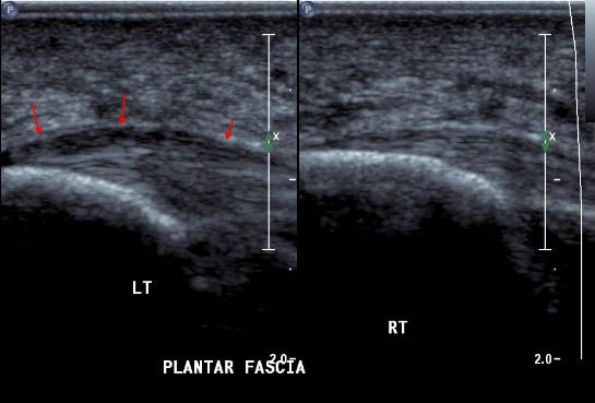 Diagnostic Ultrasound of the Plantar Fascia Ligament